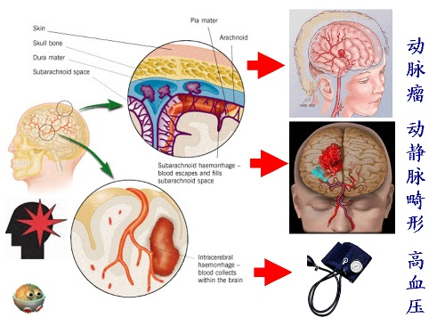 脑的形态结构图