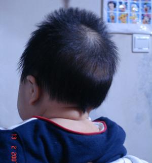 宝宝后脑勺不长头发_发型设计